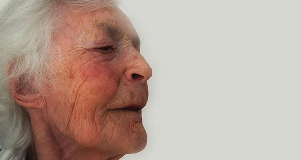 Vascular dementia: spotting the signs, addressing the causes