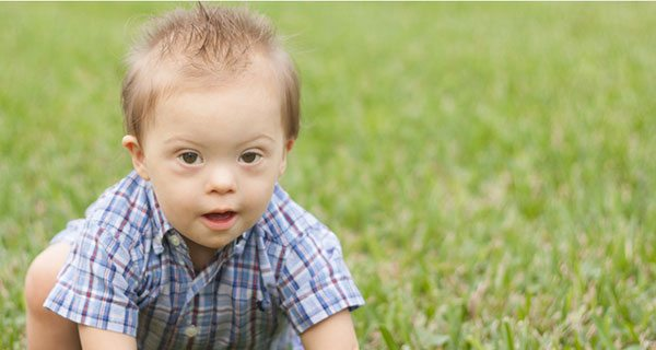 """""""I am a man with Down syndrome and my life is worth living"""""""