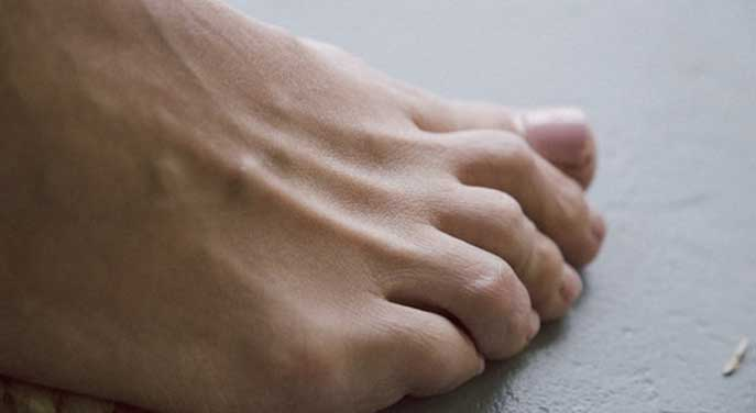 Sensors embedded in bandages could monitor diabetic foot wounds